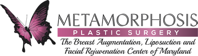 Metamorphosis-plastic-surgery