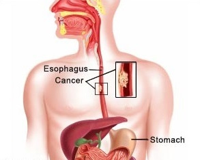an overview of the characteristics of cancer a deadly disease About melanoma skin cancer get an overview of melanoma skin cancer and the latest key statistics in the us causes, risk factors, and prevention.
