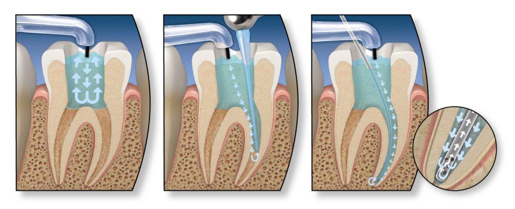 Oak brook endodontics